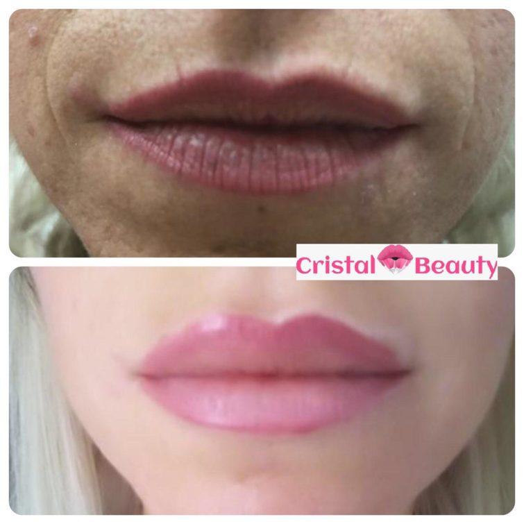filler labbra cristalbeauty