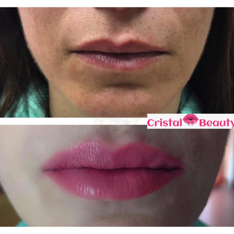 filler labbra Cristalbeauty Torino