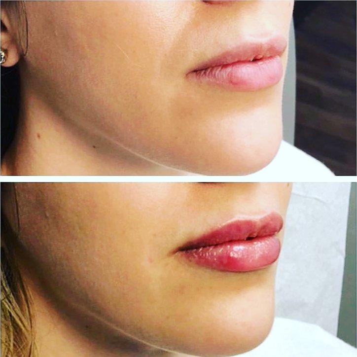 filler labbra torino 17