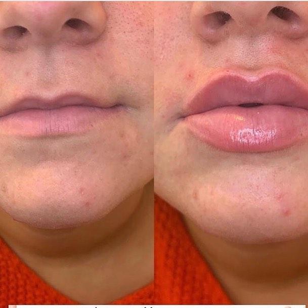 filler labbra torino 38